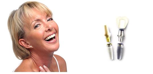 implants (1)