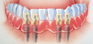 Zubné implantáty zavedené v sánke