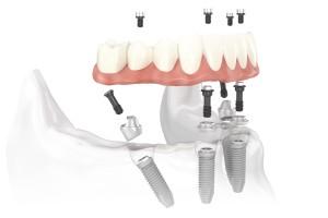 Fixný mostík pripevnený na štyroch implantátoch