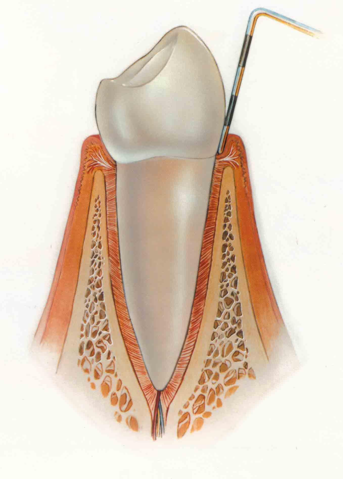 Gingivitida - meranie hĺbky ústupu kosti