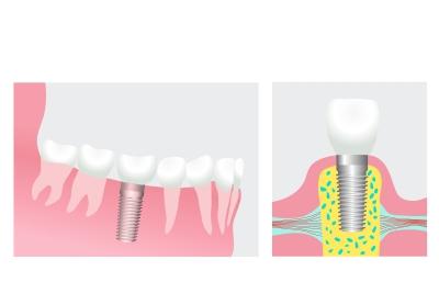 Teeth06