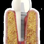 Je titán jediným materiálom ktorý sa používa pri implantácií?