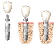 Zubný implantát, nadstavba, korunka