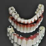 """Systém náhrady všetkých zubov """"All on four""""."""