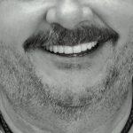 Masívny úbytok kosti a zubné implantáty