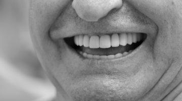 Príliš starý na zubné implantáty?