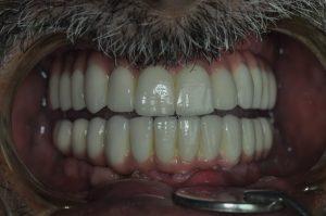Pacientove zuby po ošetrení