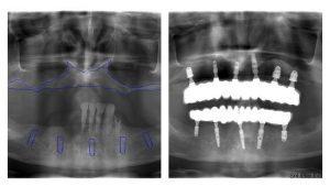 RTG snímka pred a po ošetrení
