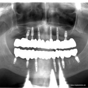 Finálny keramický zubný mostík